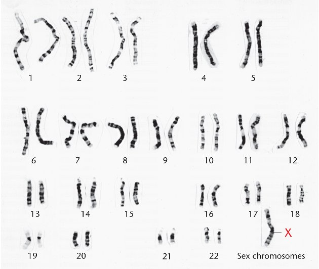 the characteristics of turners syndrome a chromosomal disorder Turner syndrome is a genetic disorder in which the cells in a girl's body are  the  x chromosome are responsible for some of the characteristics of the syndrome,.