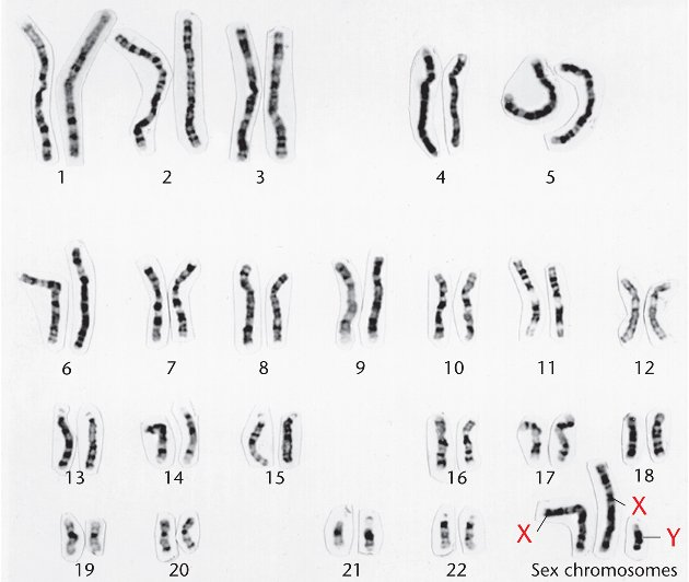 Xyy Syndrome Karyotype Chapter 7 Sex Determin...